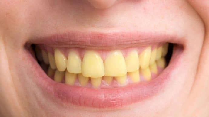 Des dents jaunes