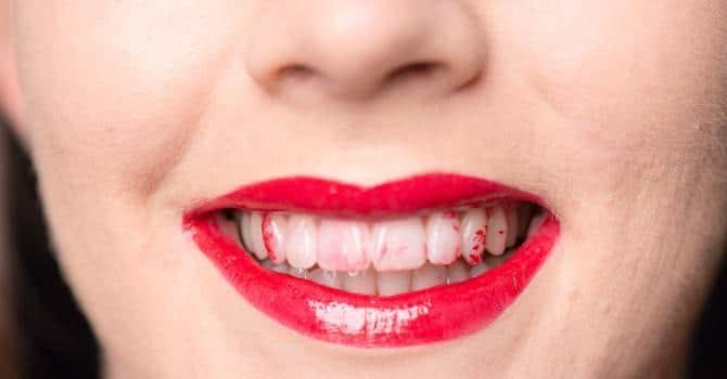 Un rouge à lèvres trop foncé