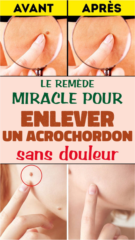 Le remède miracle pour enlever un acrochordon sans douleur