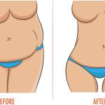 Perdre votre poids avec vos hormones, sans régime