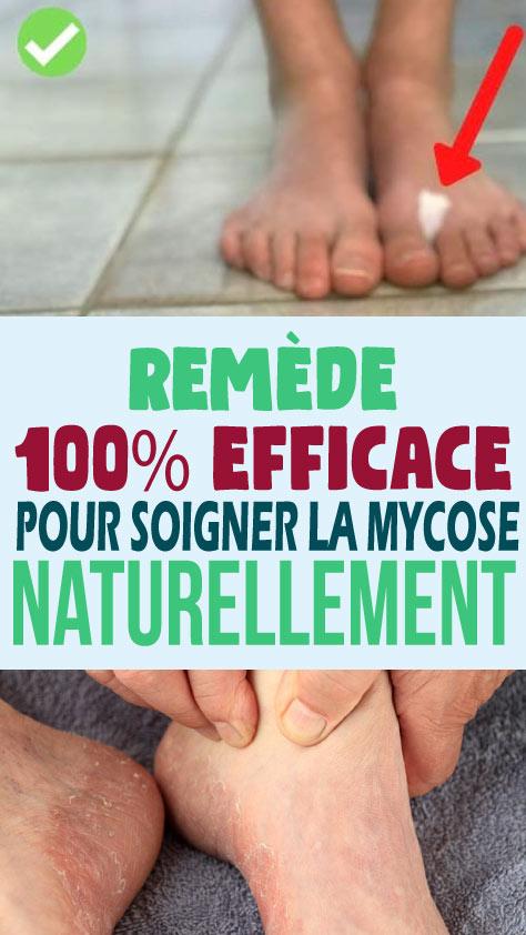 Remède 100% efficace pour soigner la mycose naturellement