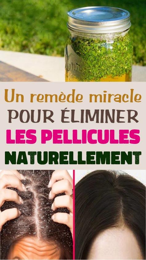 Un remède miracle pour éliminer les pellicules naturellement