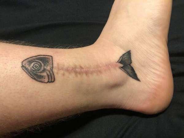 Un tatouage squelette de poisson bien réussi pour cacher cette cicatrice chirurgicale